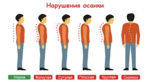 Лечение нарушений осанки в Кременчуге