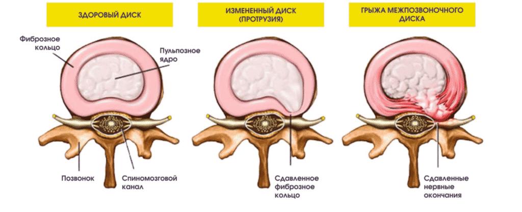 Лечение протрузий в Кременчуге