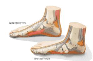 Лечение плоскостопия в Кременчуге