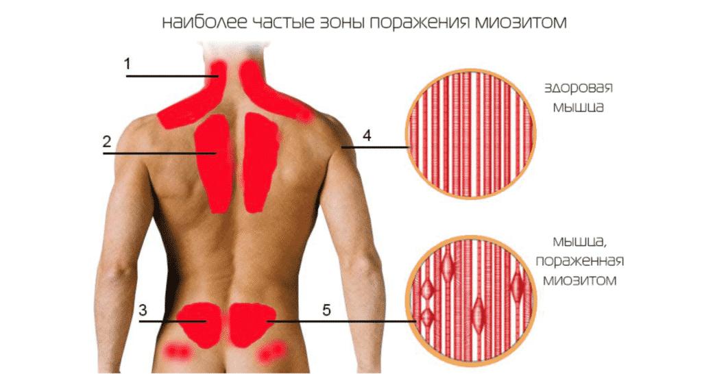 Лечение миозита в Кременчуге