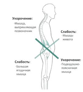 Лечение гипотонуса в Кременчуге