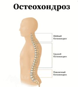 Лечение остеохондроза в Кременчуге