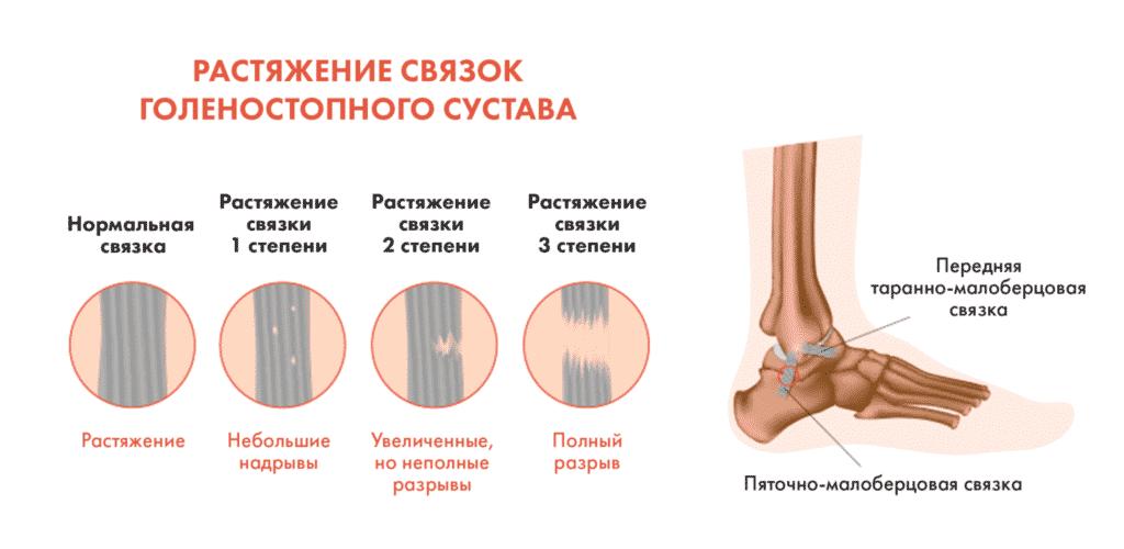 Лечение ушибов в Кременчуге
