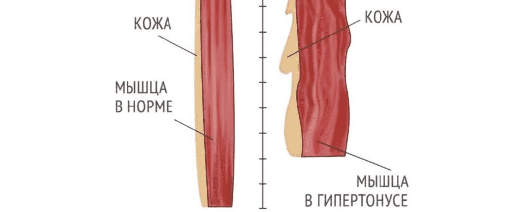 Лечение гипертонуса в Кременчуге
