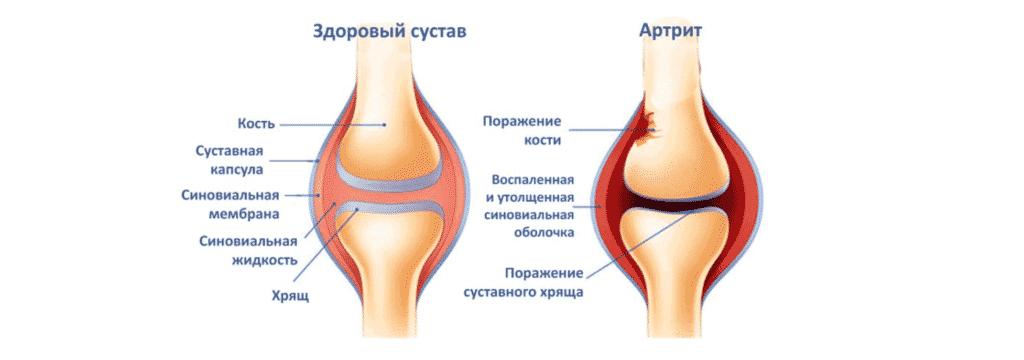 Лечение боли в колене в Кременчуге