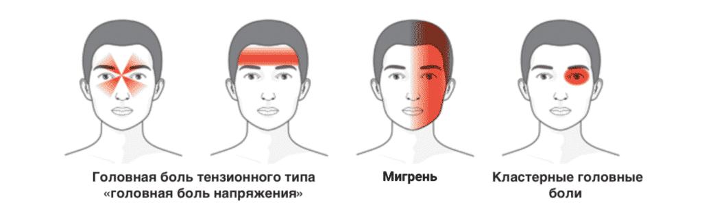 Лечение головных болей в Кременчуге