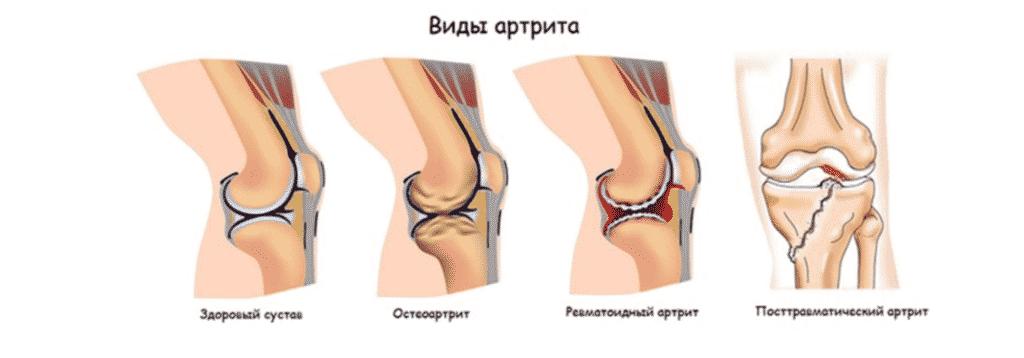 Лечение артрита в Кременчуге