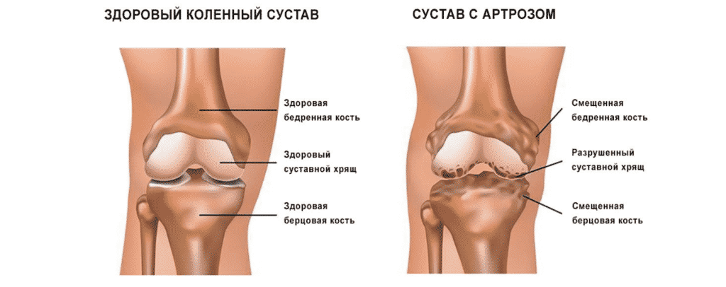 Лечение артроза в Кременчуге