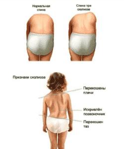 Сколиоз у детей в Кременчуге