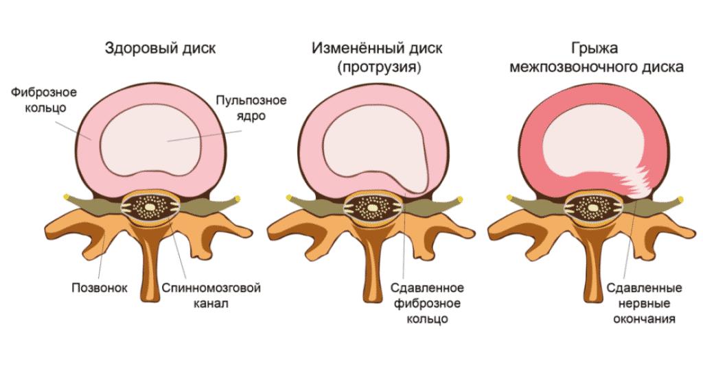 Лечение корешкового синдрома в Кременчуге